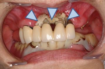 図3.BMA製剤投与後に見られた顎骨壊死(2)