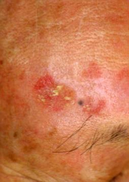 図1.湿疹として治療されていた日光角化症