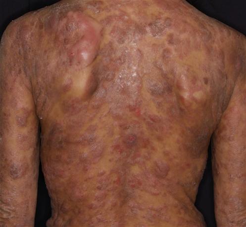 Sézary syndrome | DermNet New Zealand