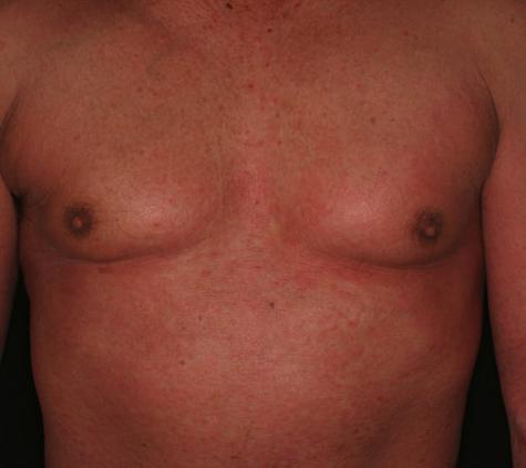 図2.セザリー症候群にみられる紅皮症