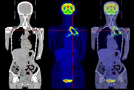 図1:肺がんのPET/CT画像