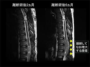 図1.脊髄離断術