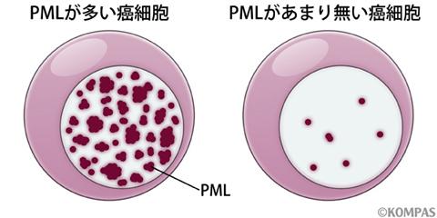 図2.PMLと癌細胞