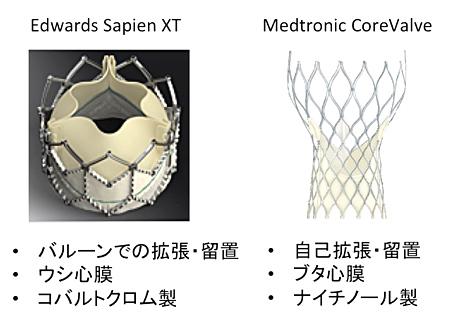 図2.Edwards社のSapien XT(左)とMedtronic社のCoreValve(右)