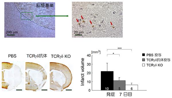 図3 脳梗塞巣におけるγδT細胞の浸潤と組織障害
