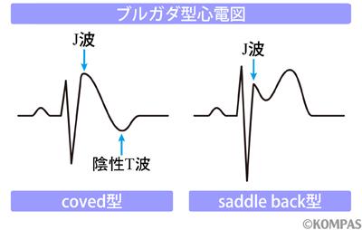 図2 ブルガダ症候群の心電図波形
