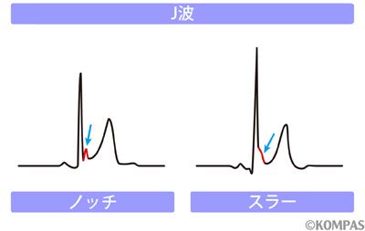 図3 J波を伴う特発性心室細動の心電図波形