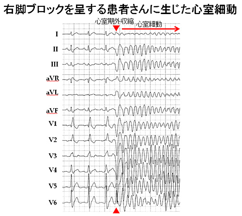 図4 完全右脚ブロックの心電図波形