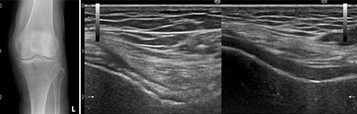 図1.膝関節の石灰化  図2.ピロリン酸カルシウム結晶の膝軟骨内沈着(左:患者さん、右:健常者)
