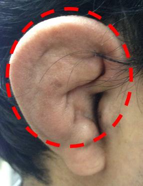 図1.耳介軟骨の炎症
