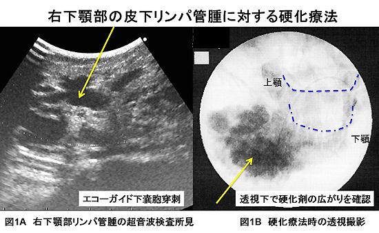 図1 皮下リンパ管腫に対する硬化療法