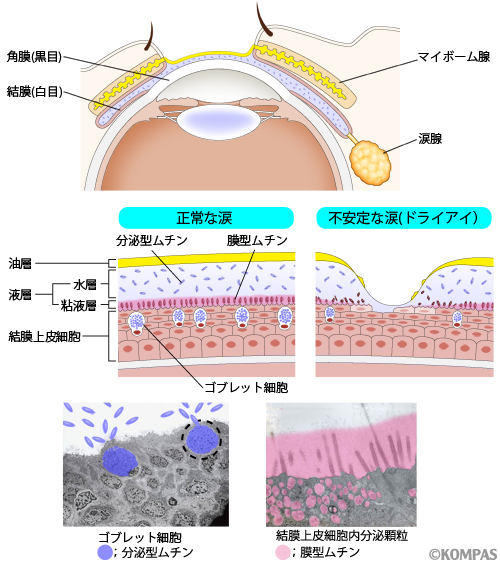 涙液層と眼表面組織の正常とドライアイの比較