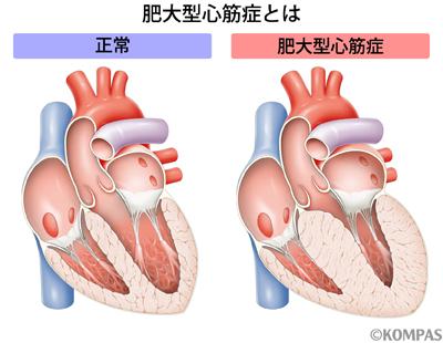 図1 肥大型心筋症