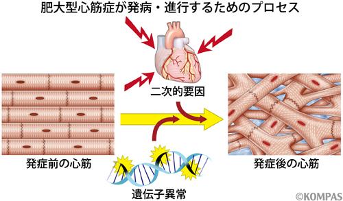 図2 肥大型心筋症の発病・進行プロセス