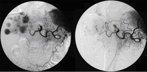 図1. 肝細胞がんに対する血管内治療前(左)・治療後(右)