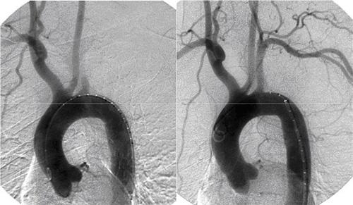図1 左鎖骨下動脈閉塞に対するステント治療前(左)・治療後(右)