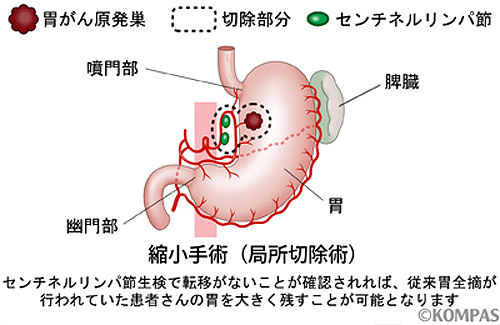 縮小手術(局所切除術)