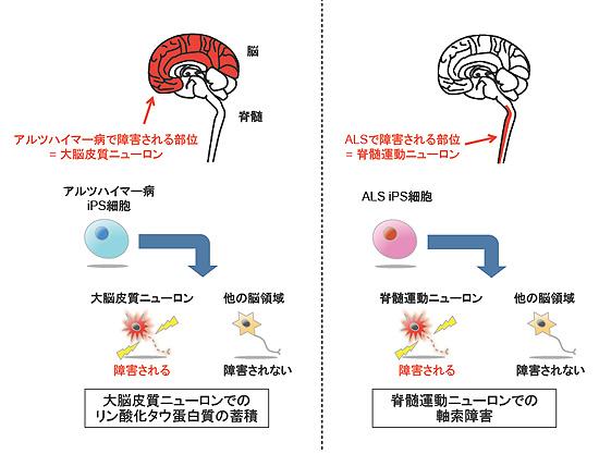 図2.神経疾患の領域特異的症状の再現