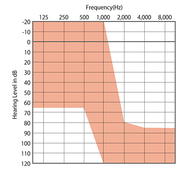 図1 残存聴力活用型人工内耳(EAS)の適応となる聴力像(赤色部分)
