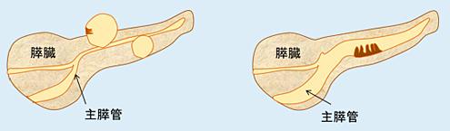 図1.分枝型IPMN(左) および 主膵管型IPMN(右)