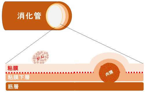 図1.がんと肉腫の違い