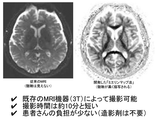 図3.MRI(3テスラ装置)によりミエリン可視化に成功