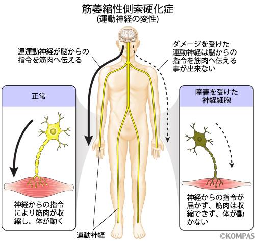 筋萎縮性側索硬化症
