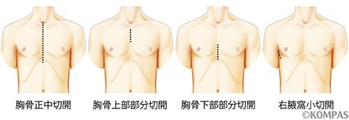 図1.大動脈弁手術時における切開の範囲