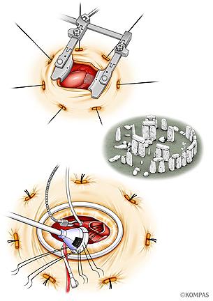 図5.ストーンヘンジテクニック