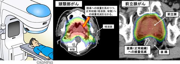 図2.頭頚部がんおよび前立腺がんのIMRT照射例