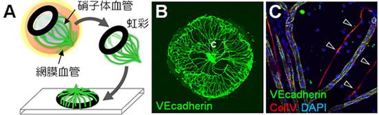 図1.マウス硝子体血管可視化技術の開発(参考文献Fig1より一部改変)