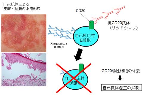 図1.天疱瘡における抗CD20抗体(リツキシマブ)の作用機序