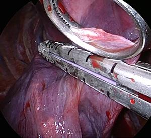 図2.当科における胸腔鏡下肺嚢胞切除術
