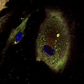図2.患者iPS細胞から作製した内耳細胞(ペンドリンが蓄積している)
