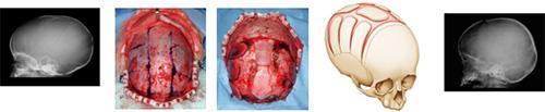 図2.生後5か月の矢状縫合早期癒合に対して縫合切除を行った症例