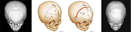 図3.生後11か月の前頭縫合早期癒合症(三角頭蓋)に対して一期的頭蓋形成術を行った症例