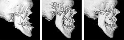 図5.17歳のクルーゾン症候群に対してLeFort型骨延長を行った症例