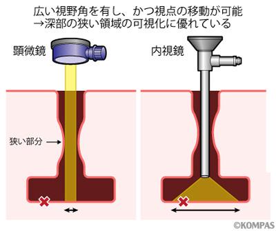 図2.内視鏡を用いるメリット1
