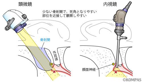 図3.内視鏡を用いるメリット2