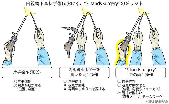 図4.内視鏡下耳科手術における