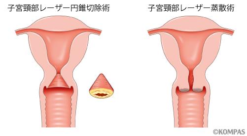 図1.子宮頚部円錐切除術と子宮頚部レーザー蒸散術の比較