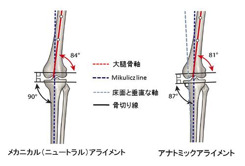 図2.TKAにおける2種類のアライメント