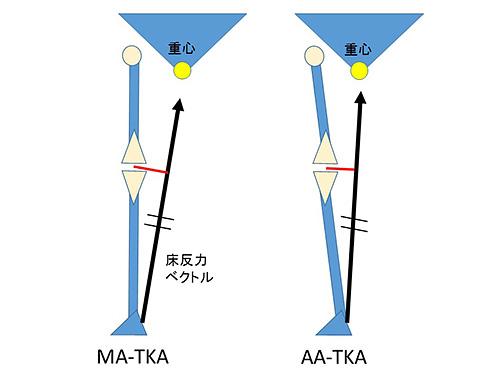 図5.TKA後の床反力ベクトルとレバーアーム