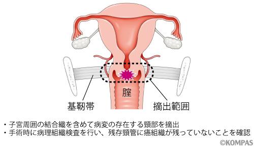 無修正 クスコ 子宮口 tokyo hot 動画
