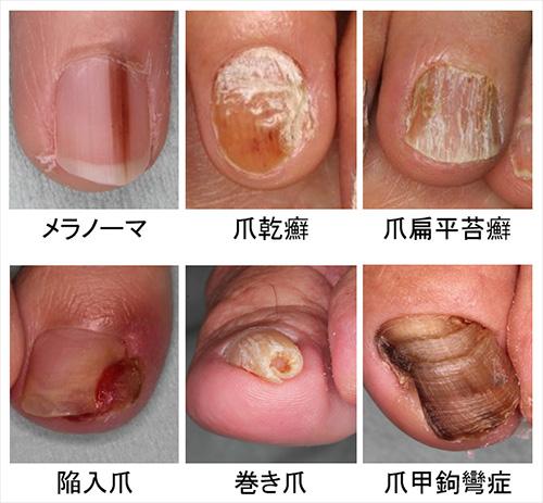 図1.爪外来で扱う疾患の例
