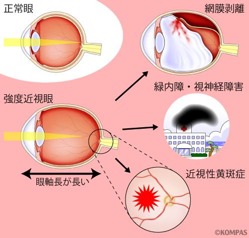 図1. 強度近視に合併しやすい眼疾患