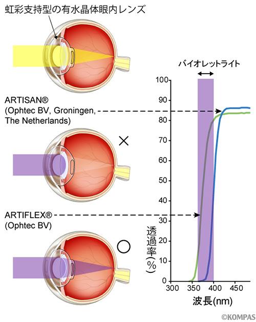 図2. 2つの有水晶体眼内レンズの比較