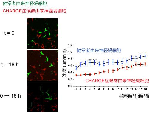 図2. 培養皿上での健常者とCHARGE症候群患者のiPS細胞由来神経堤細胞の動く速度の違い