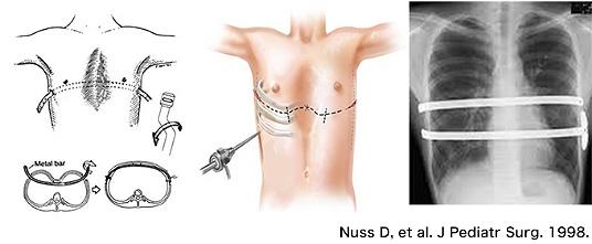図3. Nuss法の概要