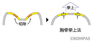 図7. 胸骨挙上法の概要(横断面像)